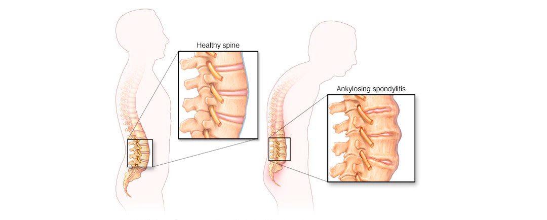 ¿Qué es la Enfermedad Espondilitis?