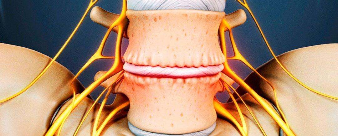 La Discopatía Degenerativa Lumbar